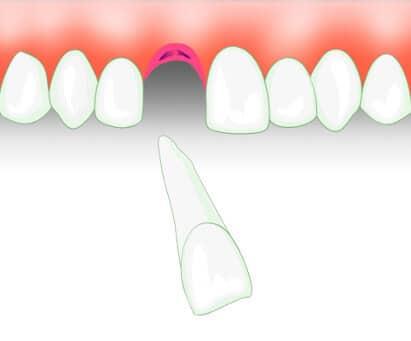 Abgebrochen schneidezahn stück Ihr Zahn