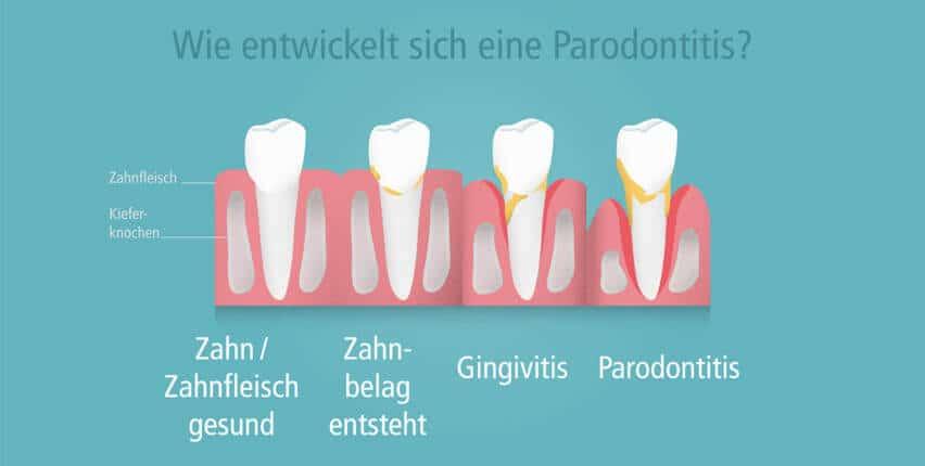 Ursache Nr 1 für Zahnlosigkeit: Parodontose