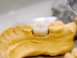 Zahnersatz Krone