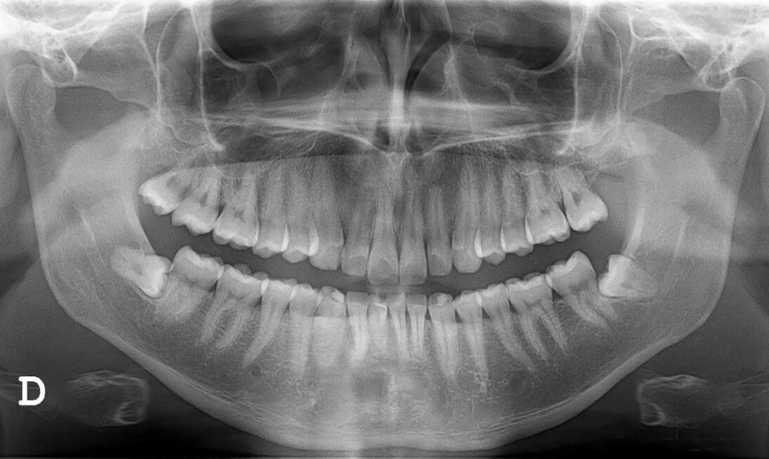 zahnfreilegung retinierte zähne