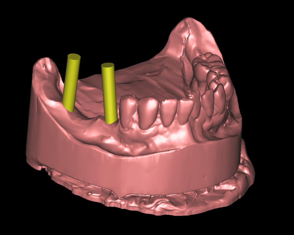 Zwei Einzelzahnimplantate im Unterkiefer rechts