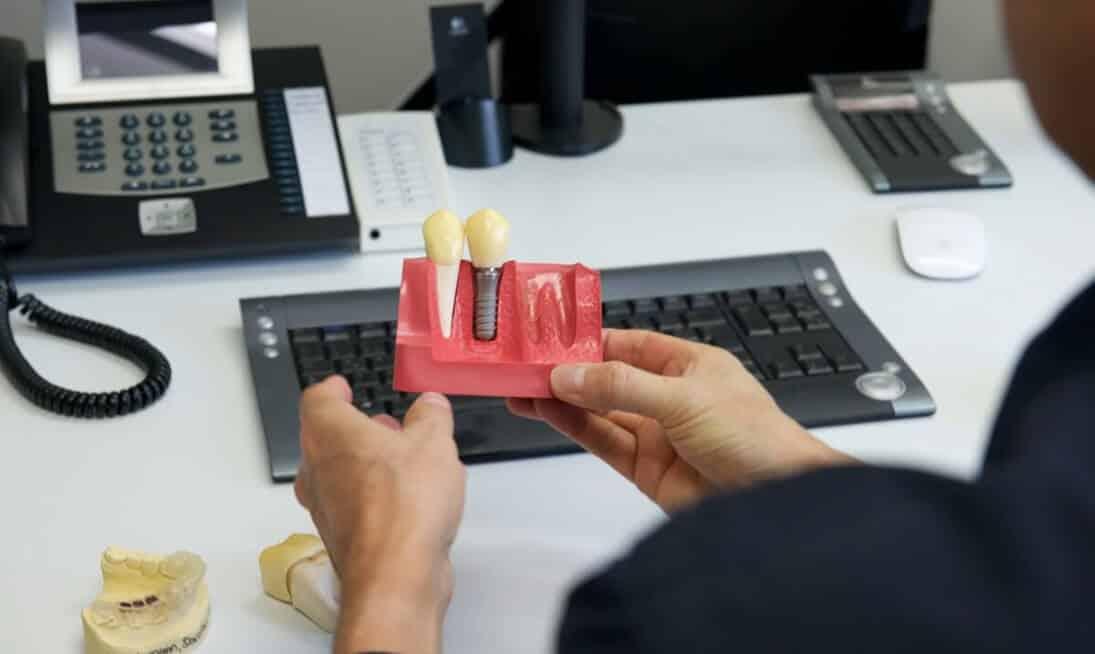 Zahnimplantate Herten