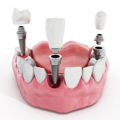 Prothetische Versorgung mit Zahnimplantate