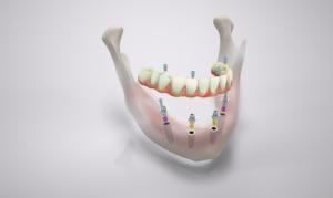 Zahnimplantate Marl