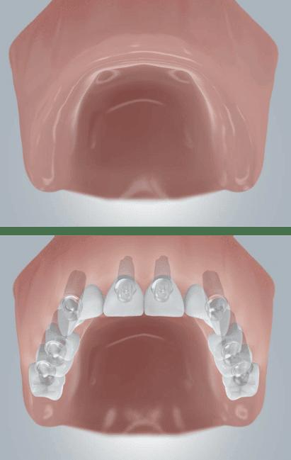 Zahnimplantate Zahnloser Oberkiefer