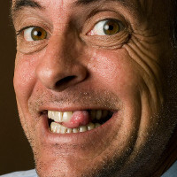 zahnlos glücklich - Neue feste Zähne