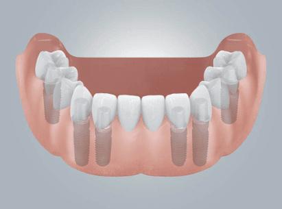 zahnloser unterkiefer-neue zähne auf 4 bis 6 implantaten