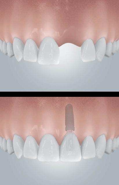 Zahnlücke Einzelzahnimplantant
