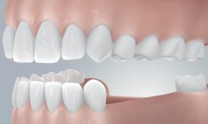 Zahnlücke füllen mit moderner Implantologie
