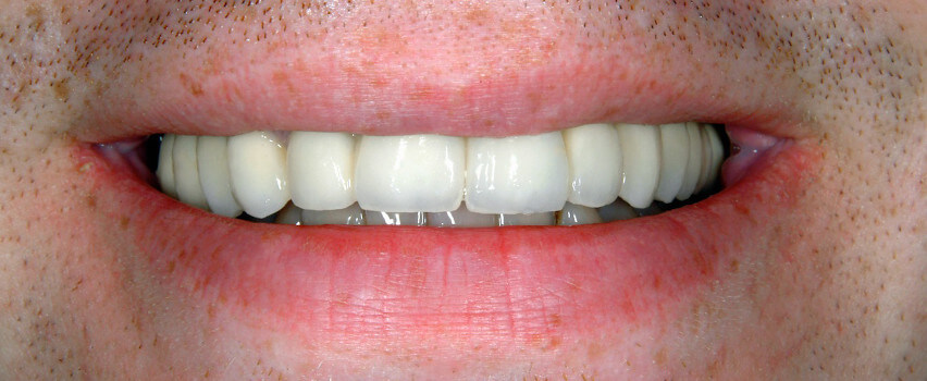Zahnlücke füllen nachher