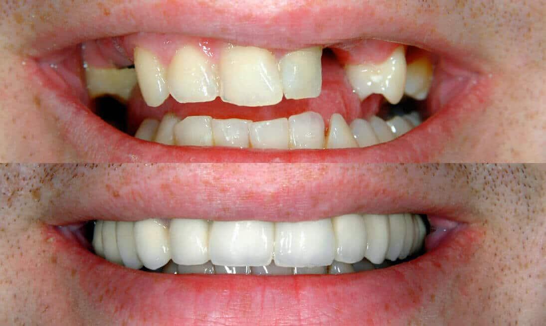 Zahnlücke füllen vorher nachher Bild