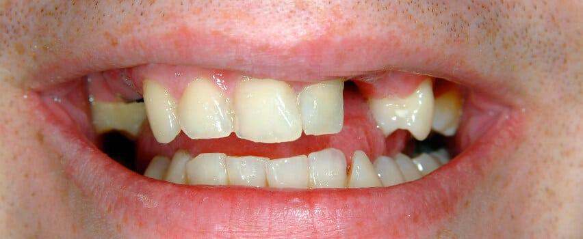 Zahnlücke füllen vorher