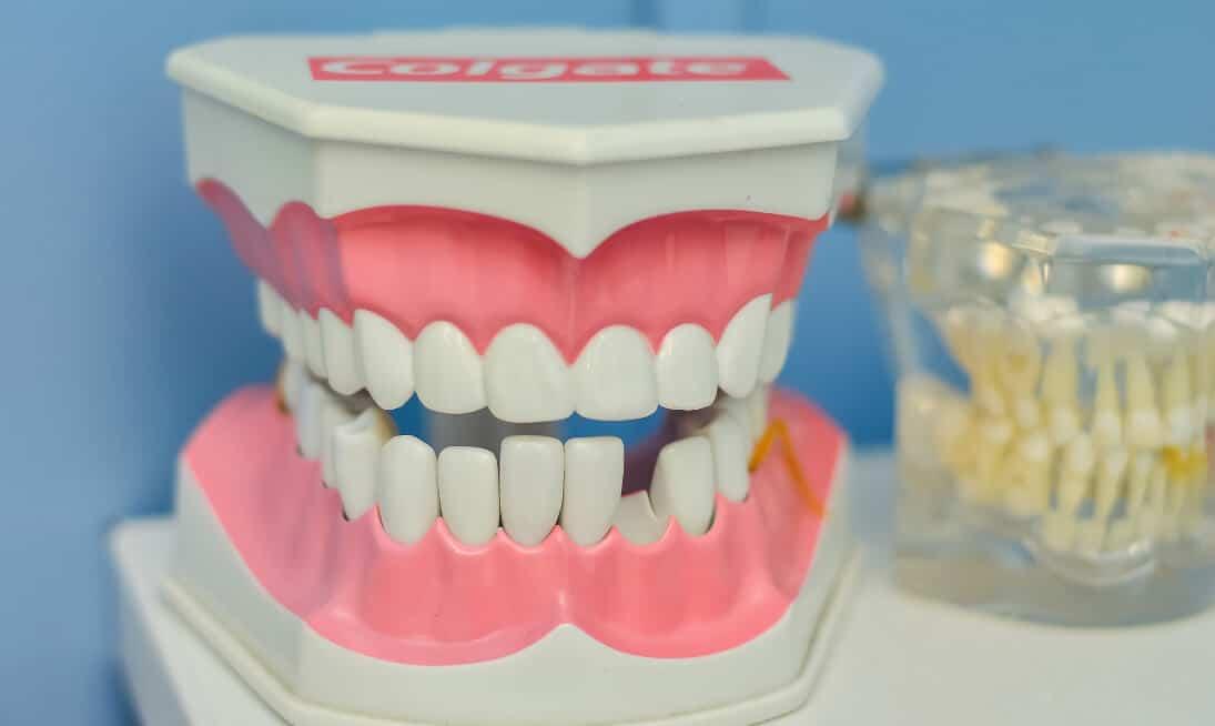 Zahnlücke oder Implantat