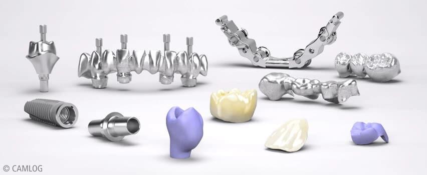 Zahnfüllungen, Zahnersatz und Zahnimplantate - Zahnklinik - Niveau für Patienten aus Witten