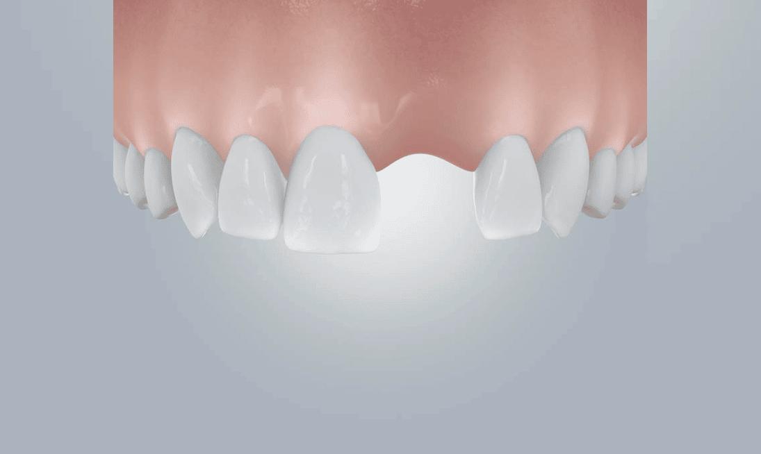 Zahnlücke Schneidezähne füllen