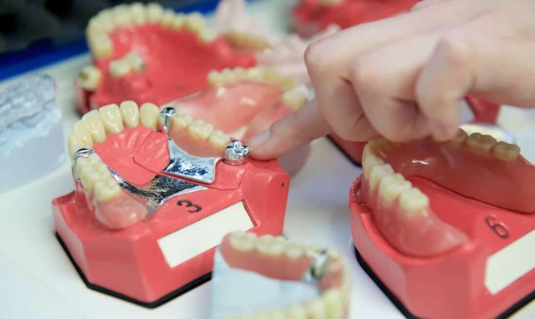 Zahnprothese - festsitzend oder herausnehmbare Teil- und