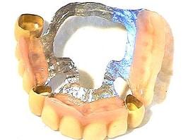 Zahnprothesene Gaumenplatte