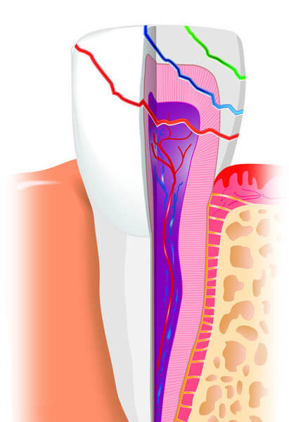 zahnwurzel bruch fraktur